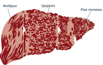 Гепатит С какие последствия могут быть